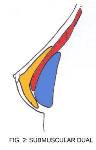 Submuscular Dual